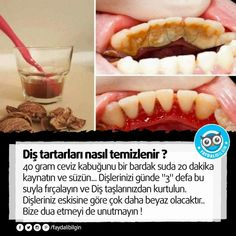 How to get rid of Tartar with one simple ingredient Health And Beauty, Health And Wellness, Health Tips, Health Fitness, Meal Prep For The Week, Alternative Health, Teeth Whitening, Hot Dog Buns, How To Stay Healthy