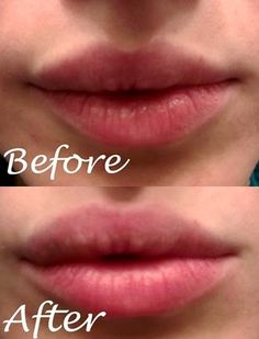 how to get fuller lips without surgery