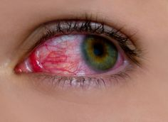 Glaucoma Symptoms and Causes