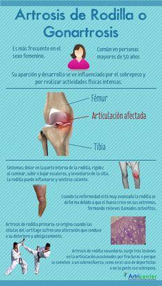 Artrosis de rodilla (Gonartrosis) www.clinicaartrosis.com   Bogotá D.C. República de Colombia. PBX: 571-6009349; 571-6837538, Telefax: 571-6836020, Móvil +57 314-2448344, 300-2597226, 311-2048006, 317-5905407