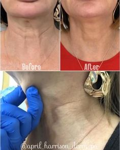 Cosmetic Fillers, Facial Fillers, Botox Fillers, Dermal Fillers, Botox Injection Sites, Botox Injections, Botox Face, Face Contouring, Botox Under Eyes