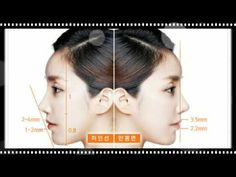 Wonjin Korean Plastic Surgery Solution For Protruding Mouth