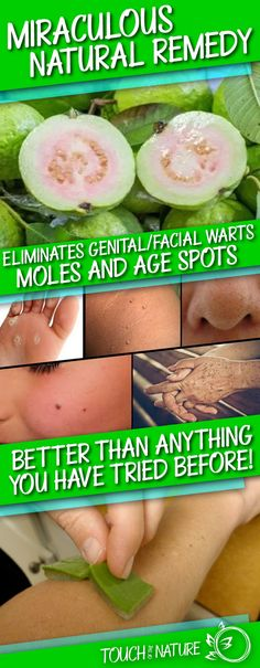 This Miraculous Natural Remedy Eliminates Genital And Facial Warts, Moles And Age Spots Better Than Anything Else You Have Tried Before! – Touch Of The Nature