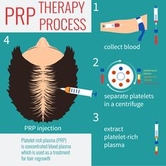Body Sculpting Regina offers Platelet Rich Plasma therapy for Hair Loss. Platelets are special cells that promote healing, accelerates the rate and degree of tissue healing and regeneration, responds to injury, and formation of new cellular growth.  These platelets can cause growth of the air follicles by stimulating the stem cells and other cells when introduced to the environment of the hair follicle. Call for a free consultation @ 306-559-0830