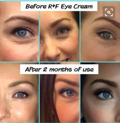 Check out these great results!!! Rodan & Fields eye cream.