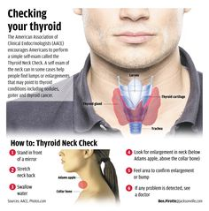Know how to check people! I've already had this cancer!... What you need to know about thyroid cancer