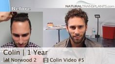 Hair Growth   Hair Transplant Before and After 1 Year (Colin)