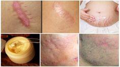 Elimina las cicatrices de cualquier parte de tu cuerpo en menos de un mes