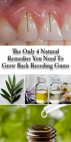 The Only 4 Natural Remedies You Need To Grow Back Receding Gums - Everything You Need To Know About Oral Health Gum Health, Teeth Health, Healthy Teeth, Oral Health, Dental Health, Dental Care, Health Care, Receeding Gums, Home Remedies