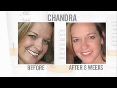 Rodan + Fields Products Before and Afters. Please let me know if you are interested in these products. I am now a consultant for R + F, because the results are amazing, and I needed it for myself! I decided to share!
