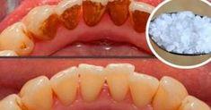 Un dentist i s-a confesat pacientului sau, din greseala, in timp ce ii igieniza dintii inainte de interventia stomatologica. Dentistul i-a spus lui I. A. despre tartru : cum se formeaza, cum pot fi evitate depunerile placilor dentare si care...