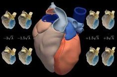 Cheaper heart attack drugs could improve outcomes, save health budgets - http://scienceblog.com/73130/cheaper-heart-attack-drugs-improve-outcomes-save-health-budgets/
