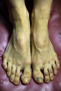 """The feet of a female ballet dancer  """"Like any profession there is a mark to be left."""