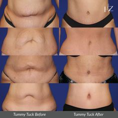 You won't have to worry about an abnormal belly button after a Tummy Tuck when Dr. Z is on your side. Our board-certified plastic surgeon is an expert at transformative tummy tucks! View more of our Tummy Tuck before and afters on our website! Tummy Tuck Results, Tummy Tuck Before After, Tummy Tuck Surgery, Board Certified Plastic Surgeons, Mommy Makeover, After Surgery, Tummy Tucks, Liposuction, Plastic Surgery