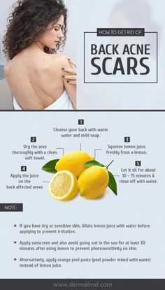 Back acne (Bacne) scars are left over scars, prompted due to the deep and severe breakouts of back acne in the form of pimples and blackheads. There are types of bacne scars consisting of Ice – select scars (because of lack of tissue) and Keloid scars (be Cystic Acne Treatment, Back Acne Treatment, Natural Acne Treatment, Acne Treatments, Back Acne Remedies, Natural Acne Remedies, Herbal Remedies, Natural Cures, Scar Remedies