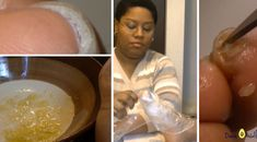 She Removes His Foot Fungus With an Easy 2-Ingredient Recipe Within 24 Hours