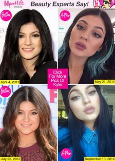 Has Kylie Jenner Had Lip Injections? Experts Say Yes