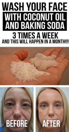 How To Get Rid of Wrinkles – 13 Homemade Anti Aging Remedies To Reduce Wrinkles and Look Younger