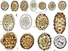 Ascaris lumbricoides- different shapes of the ovas (eggs)