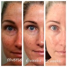 Rodan + Fields  Before and after. Reverse regimen.