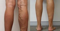 This fit athlete had the varicose veins of an old man Healthy Snacks For Adults, Keto, Makeup For Teens, Varicose Veins, White Horses, Beauty Hacks Video, Stretch Marks, Butt Workout, Beauty Women