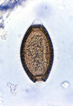 Biology 545 and Biology 546  Supplemental Tutorial for Human Parasitology  -  This tutorial, currently composed of 145 different images, Photographs of parasites, including many that infect humans, are shown.