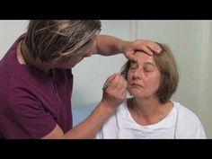 Neues Video über ein Augenbrauenlifting mit Ober- und Unterlidstraffung http://www.combeauty.com/videos/augenbrauenlifting-mit-ober-und-unterlidstraffung.html