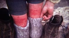 1972: Women pulling down socks to show off red chigger insect bites. http://www.pond5.com/stock-footage/59684204?ref=StockFilm keywords:1972, Women, pulling, down, socks, show, off, red, chigger, insect, bites, 1970s, 8mm, film, old, home movie, vintage, retro, rare, unique, archival, Americana, documentary, editorial, history, classic, Hiking, rash, itchy, burn, hurt, miserable, insect repellant, swelling, painful, skin, nature, severe, legs, ankles, pain, calamine lotion