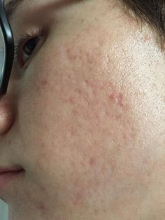 [Acne] How to clear up acne scars from years ago?