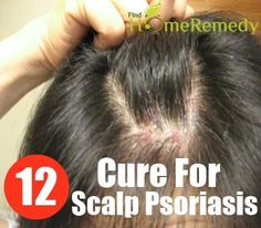 DIY Psoriasis Remedies ~ Find Home Remedy - http://marvelouscosmetics.com/products/dermalex-psoriasis-treatment-cream-150-grams-tube-cortisone-free