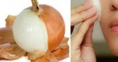 You Will Never Again Throw Away Onion Peels After Reading This Plus Jamais, Never Again, Beauty Recipe, Natural Cosmetics, Weight Loss Tips, Natural Remedies, Garlic, Beauty Hacks, Healthy Living