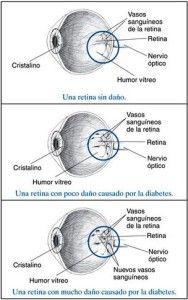 Vallarta Medical CareCuando la diabetes daña tus ojos   Vallarta Medical Care