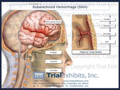 traumatic subarachnoid hemorrhage - Google Search