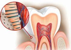 Conoce qué es el cemento dental. #dentalcare #dentist
