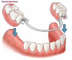 Klammerprothese als einfachste Form für heraunehmbaren Zahnersatz