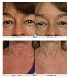 optimera before after shots whats new nerium real results nerium product Best Anti Aging, Anti Aging Cream, Anti Aging Skin Care, Nerium Night Cream, Nerium Results, Night Face Cream, Nerium International, Skincare Blog, Skin Cream