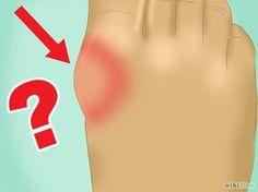 es bueno hacer ejercicio con acido urico rodilla alimentos permitidos y no permitidos para acido urico que es acido urico y sus sintomas