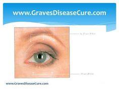 Thyroid Eye Disease and Its Healing- Exercises - YouTube
