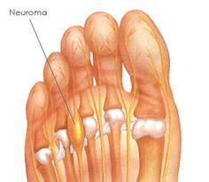 Le névrome de Morton crée des engourdissements, brûlures ou chocs électrique dans les orteils.