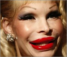 Back to Post :Cosmetic Surgery Gone Wrong Pictures