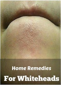 Home Remedies To Remove Whiteheads