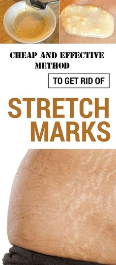 The skin is the largest organ of the human body. Everything is connected in our body. Skin health depends on many factors that are difficult to enumerate. Today you'll learn what to do to get rid of stretch marks permanently. No dermatologist will tell yo Health Remedies, Home Remedies, Natural Remedies, Arthritis Remedies, Natural Treatments, Reduce Stretch Marks, Everything Is Connected, Tips Belleza, Healthy Tips