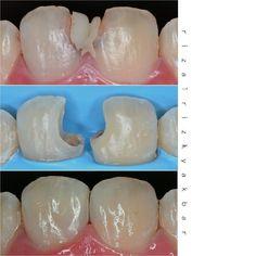 Direct composite 11 21 Z350xt dentin a3 enamel a2 translusen Polishing enhance soflex diacomp eve #directcomposite #compositerestoration #compositefilling #dentist #odontologia #dentistry #dentalanatomy #dentalphotography #directrestoration #biomimetic #rubberdam #rubberdamology by rizalrizkyakbar Our General Dentistry Page: http://www.lagunavistadental.com/services/general-dentistry/ Google My Business: https://plus.google.com/LagunaVistaDentalElkGrove/about Our Yelp Page…