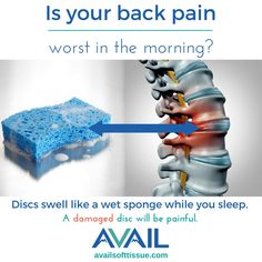 There's nothing traumatic about sleep. Before you go shopping for a new bed, understand that pain in the morning is a classic indication of disc damage. Discs are filled with fluid to act as shock absorbers of the spine. When you lay down, fluid in the discs causes them to swell like a wet sponge. As you get up, gravity puts force on a swollen disc. If a disc is damaged, this will be painful. #colorado #glenwoodsprings #aspen #vail #snowmass #carbondale #basalt #newcastle #roaringforkvalley