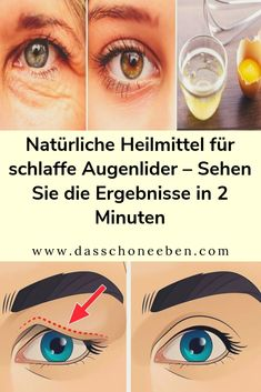 Natural Remedies For Sagging Eyelids - See Results In . , Natural Remedies For Sagging Eyelids - See Results In 2 Minutes Skin Secrets, Skin Tips, Skin Care Tips, Beauty Tips For Face, Health And Beauty Tips, Beauty Tricks, Health Tips, Beauty Guide, Beauty Habits