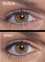 Permanent Make Up Eyeliner Before & After Pictures