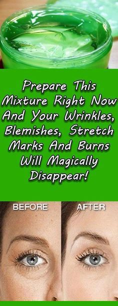 Prepare This Mixture Right Now And Your Wrinkles, Blemishes, Stretch Marks And Burns Will Magically Disappear! Prepare This Mixture Right Now And Your Wrinkles, Blemishes, Stretch Marks And Burns Will Magically Disappear! Beauty Care, Beauty Skin, Health And Beauty, Beauty Box, Beauty Makeup, Diy Beauty, Face Beauty, Beauty Secrets, Beauty Hacks