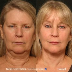 144 Best Anti Aging Treatments Images In 2020 Anti Aging