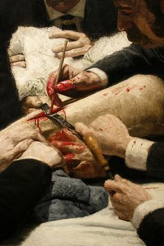 "Detail - ""The Gross Clinic,"" by Thomas Eakins, 1875"