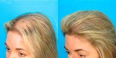 Voici une recette de shampooing fait maison qui améliore la pousse de vos cheveux.